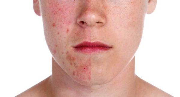 tratamiento contra acne