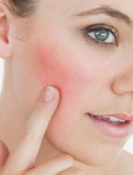 tratamiento contra la rosacea