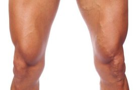 varices-hombre